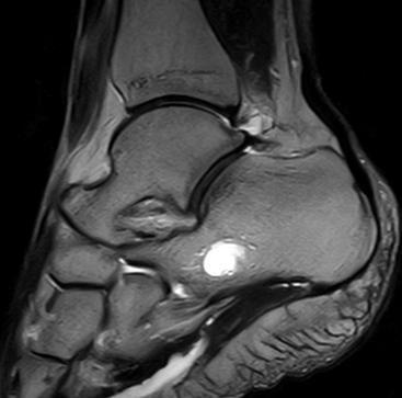Мрт суставов в санкт-петербурге срочно что такое перелом коленного сустава