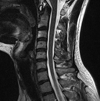 МРТ позвоночника шейного отдела