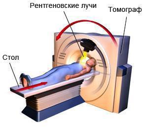 Спиральная компьютерная томография, МСКТ
